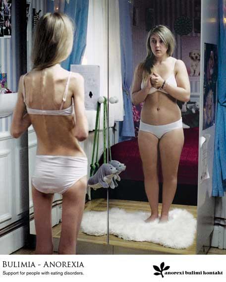 anorexia-y-bulimia1