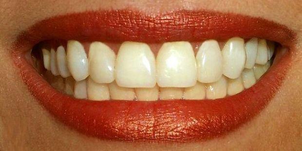 boca_mujer_sonriendo_MUJIMA20100520_0028_25
